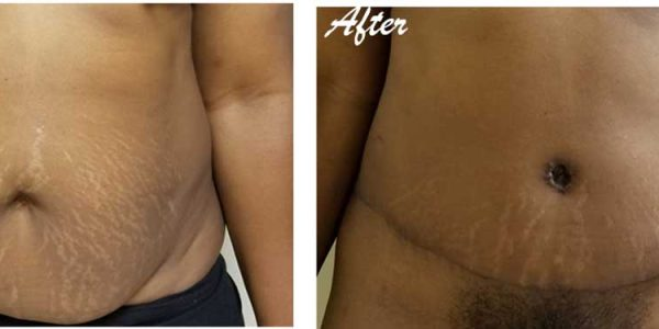 before after - Abdominoplasty