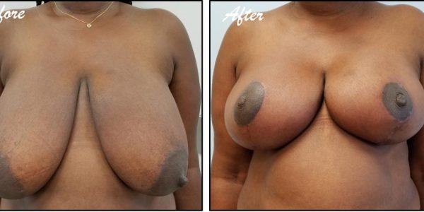 before after - Breast Reduction