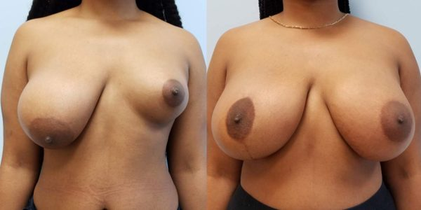 before after - Breast Asymmetry